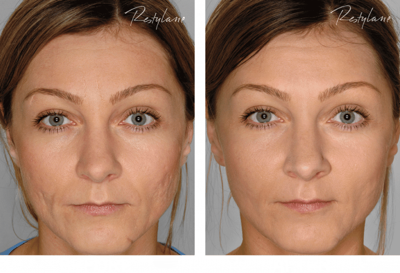 Restylane Before After Full Face 09 Skin Care Center Of